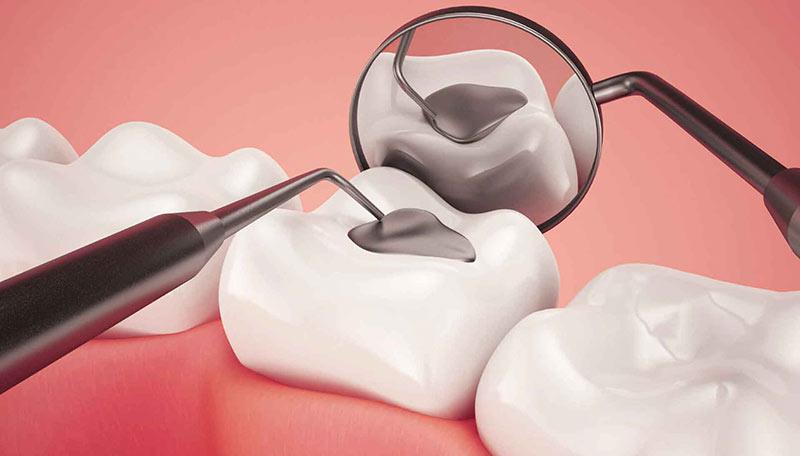 نکات مراقبت از دندان های پر شده