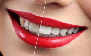 یکی از متداول ترین سوالاتی که بیماران از دندانپزشک خود می پرسند،تفاوت لمینیت سرامیکی و کامپوزیتی، مزایا و معایب این دو روش است.
