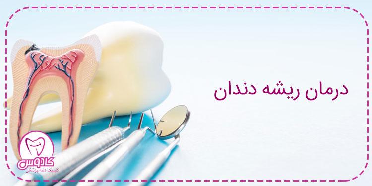 ترمیم ریشه دندان (Endodontic) و مراقبتهای بعد از آن