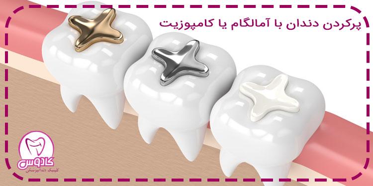 استفاده از آمالگام یا کامپوزیت برای پر کردن دندانها