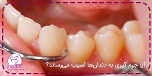 آیاجرم گیری باعث آسیب دیدن دندان میشود؟