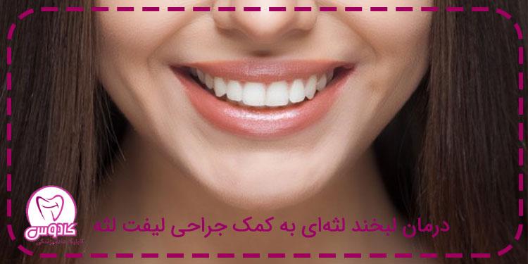 درمان لبخند لثهای به کمک جراحی لیفت لثه