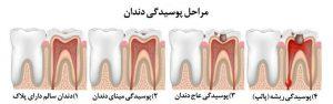 پوسیدگی دندان - کلینیک دندانپزشکی کادوس