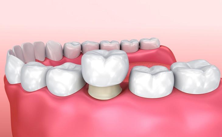 روکش دندان چیست و چه مزایایی دارد؟