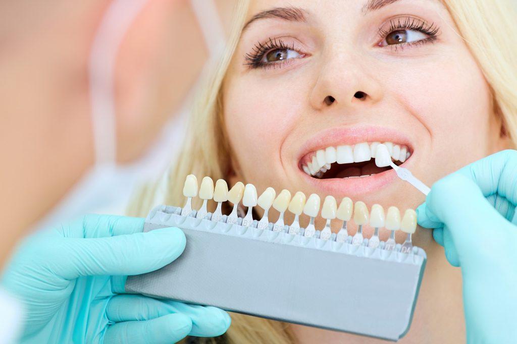 هر آنچه در مورد لمینت دندان که باید بدانید.