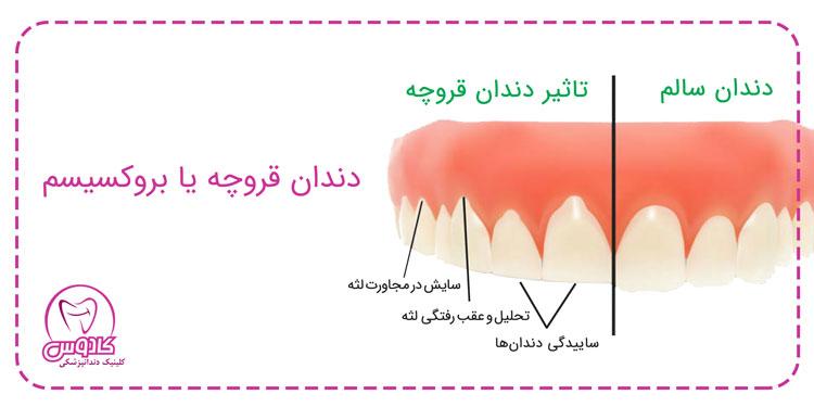 دندان قروچه یا بروکسیسم چیست؟