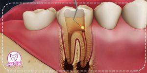 درمان ریشه دندان و مراقبتهای بعد از آن