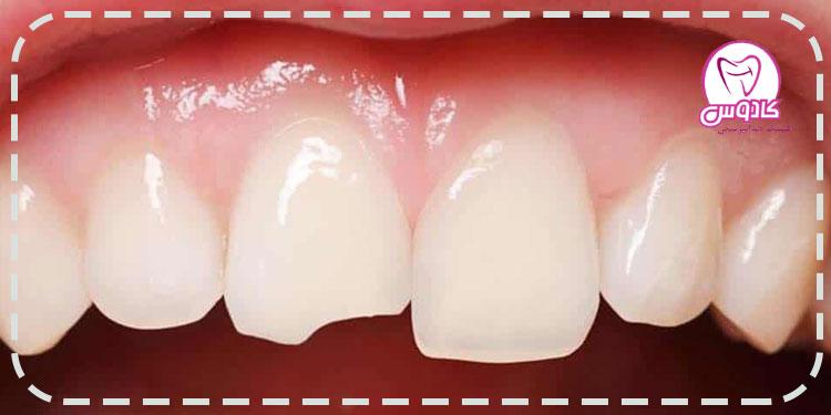 شکستگی دندان - درمانهای زیبایی دندان