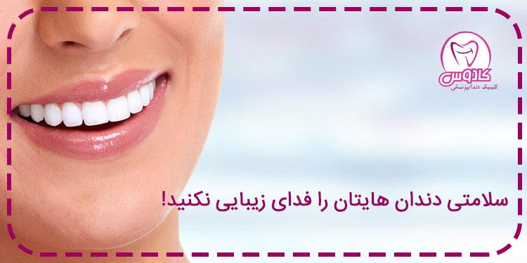 سلامتی دندانهایتان را فدای زیبایی نکنید