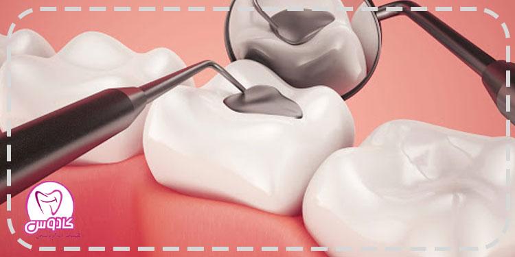 آمالگام مادهای برای ترمیم دندان است که برای پر کردن حفرههای ناشی از پوسیدگی دندان استفاده میشود