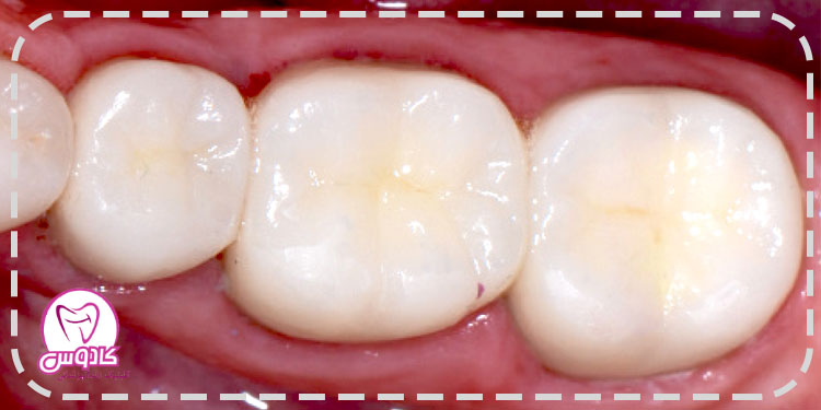 کامپوزیت استفاده شده در ترمیم دندان به خصوص ترمیمهای زیبایی در دندانهای جلو باید قابلیت بازسازی لایه به لایه را داشته باشد