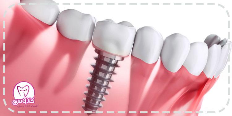 استفاده از ایمپلنت برای درمان بی دندانی