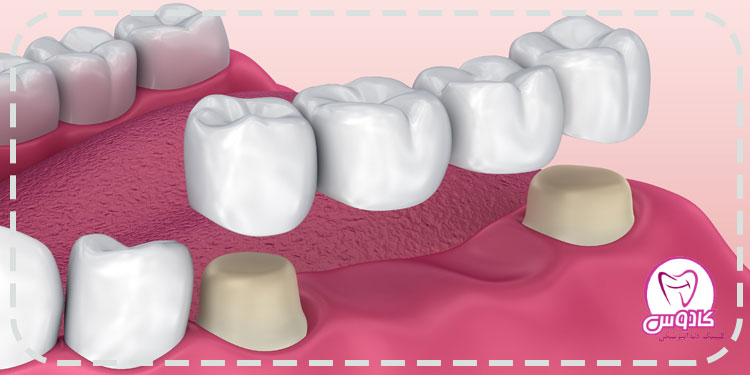استفاده از بریج دندان برای درمان بی دندانی