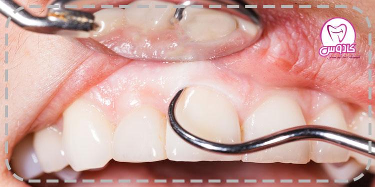 جرم گیری دستی دندان