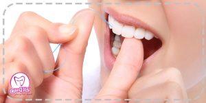 مراقبت از دندان با نخ دندان