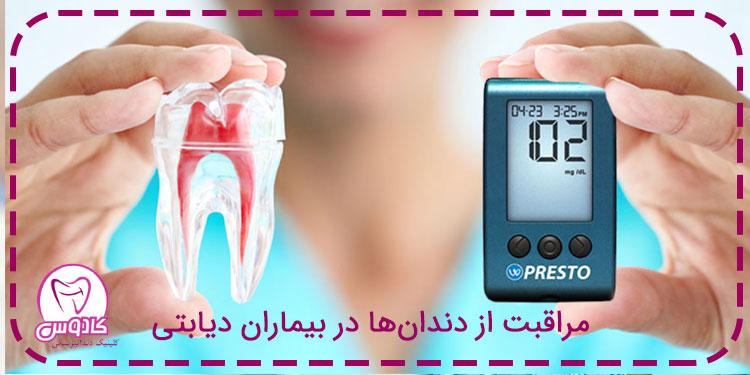 مراقبت از دندانها در بیماران دیابتی
